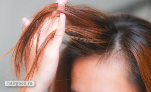 Как избавиться от жирности волос в домашних условиях. Особенности гигиены для быстро жирнеющих волос
