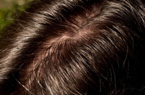 После покраски волосы быстро жирнеют. «Зри в корень», или что делать, если волосы быстро становятся жирными