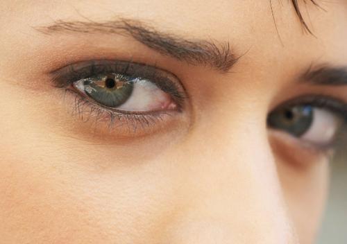 Круги под глазами причины болезни у женщины. Темные круги под глазами, как симптом системного заболевания
